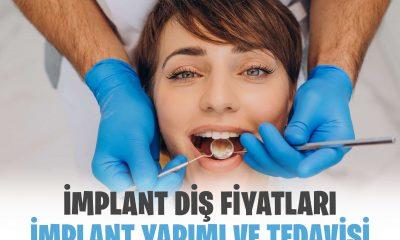 İmplant Fiyatları ve İmplant Diş Yapımı?